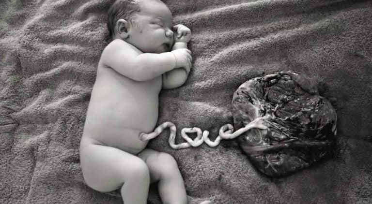 Napanuoran lahjoittaminen synnytyksen jälkeen