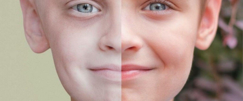 12 merkkiä leukemiasta lapsella