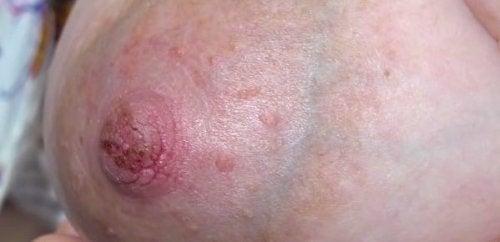 Kipeiden ja halkeilevien nännien ehkäisy ja hoito
