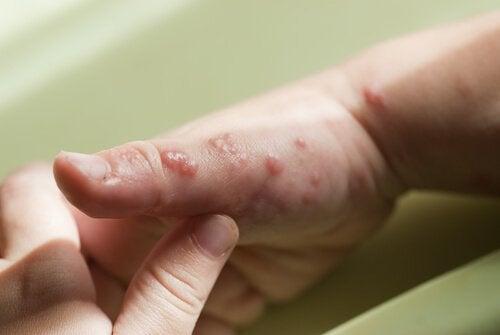 Lasten herpes: Oireet, syyt ja hoito