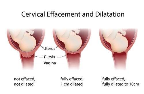 Synnytyksen vaiheet: Avautumisvaihe