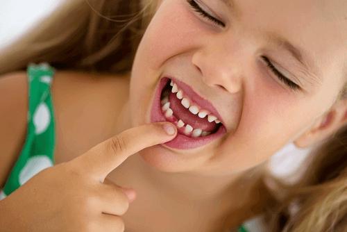 Milloin lapsen maitohampaat vaihtuvat rautahampaisiin?