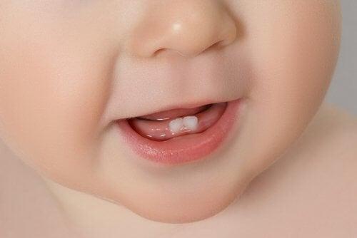 Lapsen hampaiden puhkeaminen ja kivunlievitys