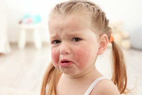 Lasten ruoka-aineallergiat voivat aiheuttaa muun muassa allergista ihottumaa