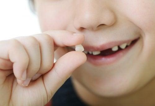 Mitä tarkoittavat unet, joissa irtoaa hampaita?