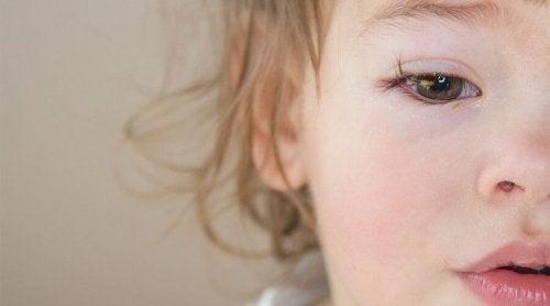 Silmän sidekalvon tulehdus vauvalla