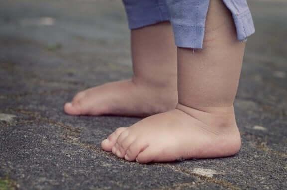 Lapsen akondroplasia