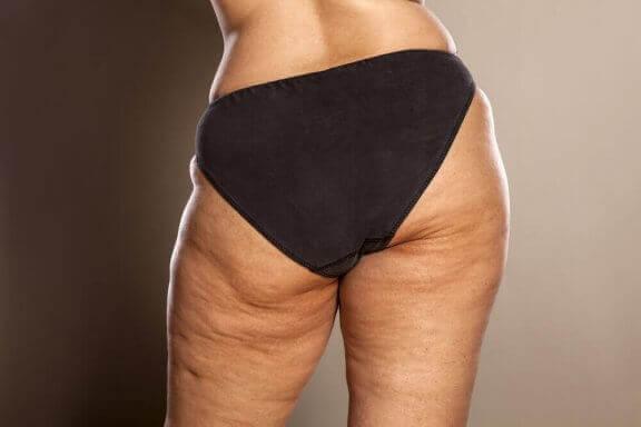 Selluliittia saattaa syntyä raskaudenaikaisen painonnousun myötä