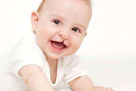 Yleisimmät lasten pään ja kasvojen alueen epämuodostumat