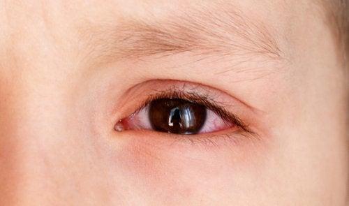 Sidekalvon alainen verenvuoto lapsella