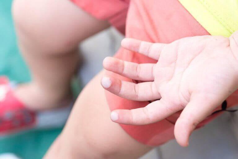 Lasten rakot ja niiden hoito