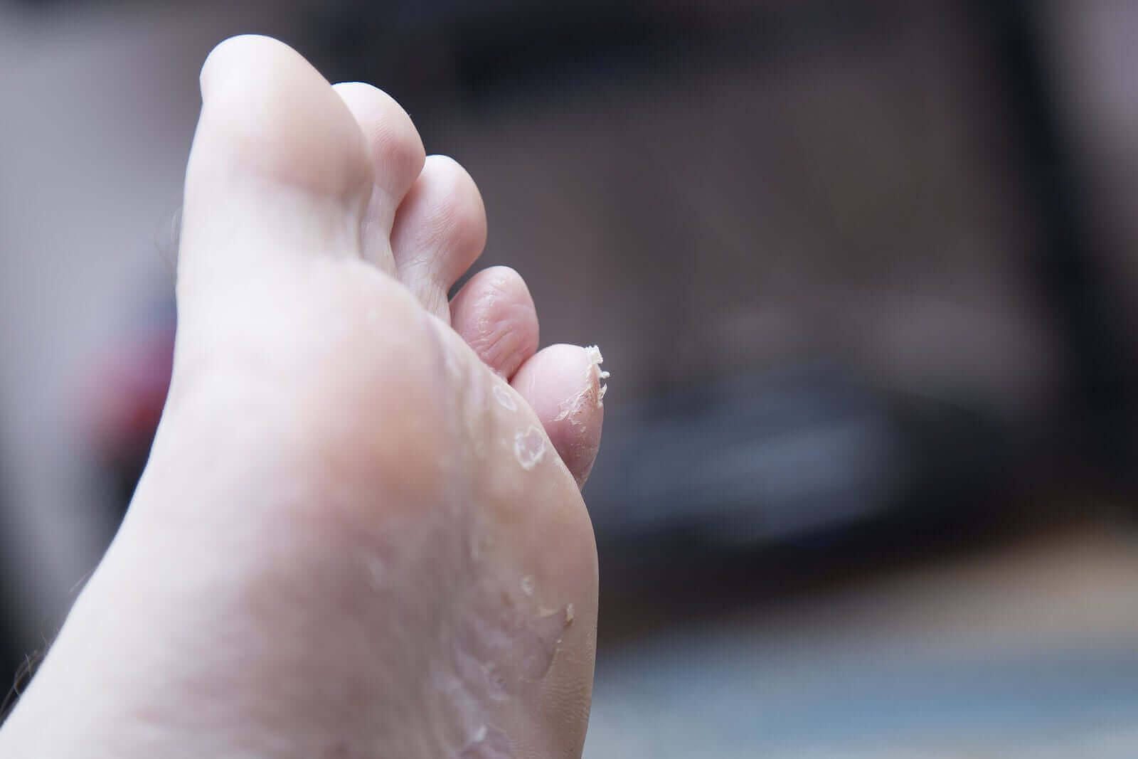Jalkapohjan ihotulehdus lapsella