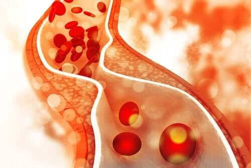 Lapsen korkea kolesteroli on asia, johon tulee puuttua varhaisessa vaiheessa