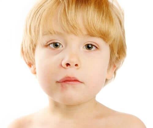 Lapsen suupielten tulehdus on usein bakteerin aiheuttama