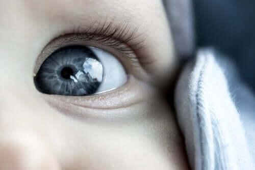 Kuinka poistaa rähmä vauvan silmistä?